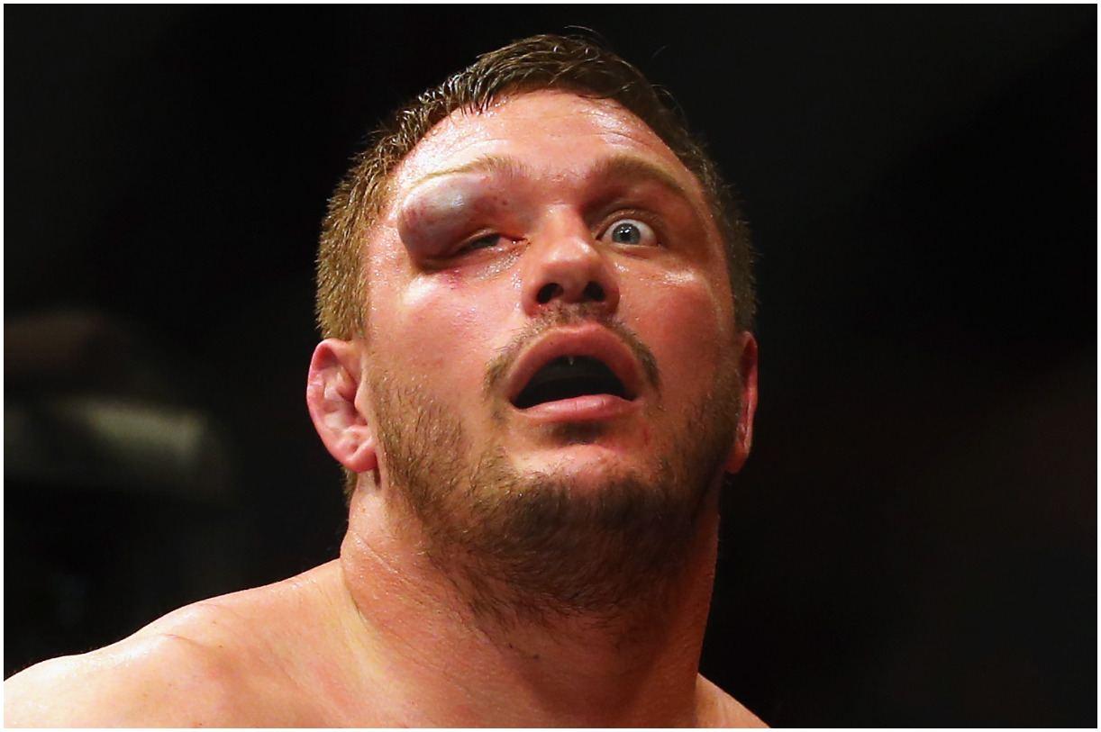 Matt Mitrione eye injury